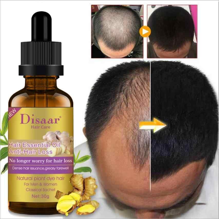 Disaar Hair Care Hair Growth Ginger Tonic Oil 30g Sg Seller Fast Delivery Reduce Hair Fall Hair Regrowth Fast Powerful Effective Essence Serum Essential Oil Treatment Anti Hair Loss